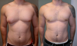 Gynecomastia-before-and-after